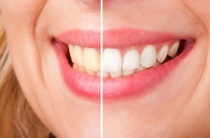 Must-have Teeth Whitening Home Remedies